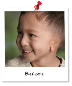 Ear Before Surgery