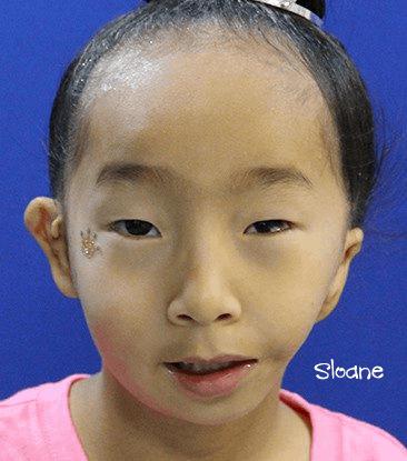 Goldenhar Syndrome / OAVS