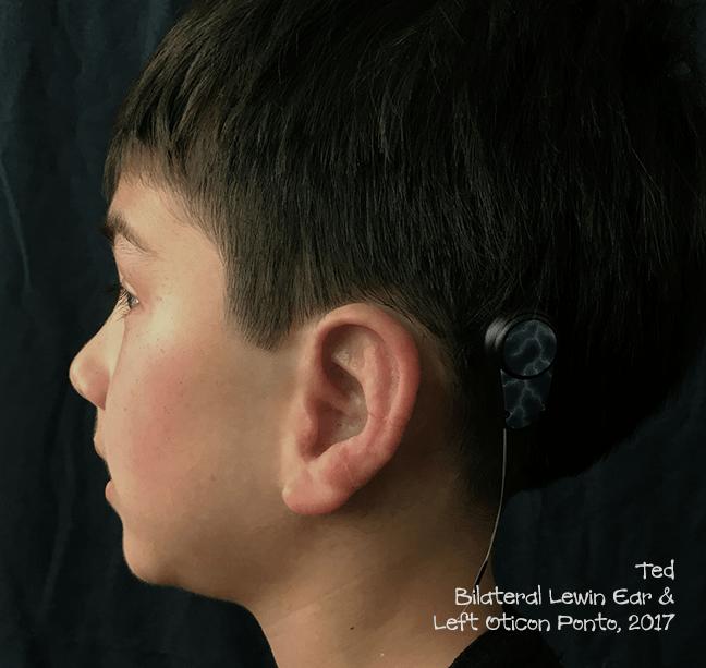 Bilateral Lewin Ear & Left Oticon Ponto