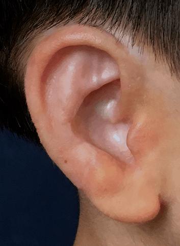 healed-ear
