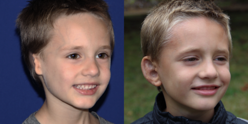 CAIDEN_B&A_34