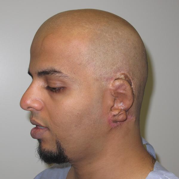 Adult Failed Rib Ear Left Medpor 2013